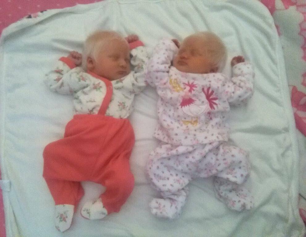 Nacieron mellizas albinas en Tucumán y su foto se volvió viral